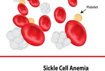 Sickle cell & Thalassemia