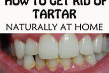 remove tartar naturally