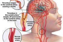 Strokes / Cardiovascular Accidents