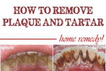 remove plaque & tartar