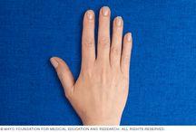 arthritic exercises