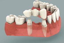 Dental Bridges in Las Vegas / Dr. Afshin Arian specializes in dental bridge treatment at affordable rates to help replace your missing teeth.