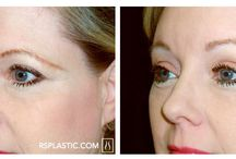 Browlift / View before and after photos of Schwartz's best work!