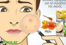 Φυσικές θεραπείες