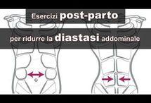 diastasi addominali