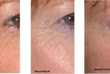 Before and After Skin Care Progress Pictures / Customers share their results...we don't really call them before and after.  We call these progress pictures.  The skin is not a house remodeling ...rather, the skin is the largest organ in our body and susceptible (good or bad) to what it is exposed to.