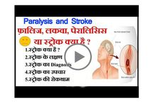 Paralysis (Stroke) : Causes, Symptoms, Treatment in Hindi