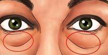 poches et cernes sous les yeux