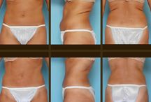 Liposuction Before and Afters / Here are a few of our beautiful clients!