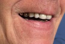 Smile Makeovers! / Perfit Dental Solutions smile makeovers!