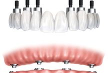 Dental Implants /   Dental implants are a great way to replace teeth that have been lost. It can replace single or multiple missing teeth, or an alternative to dentures.