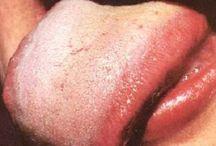 болезни по языку