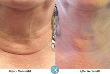 네리움(Nerium)