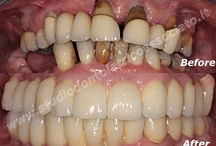 All on 4 - Teeth in one hour