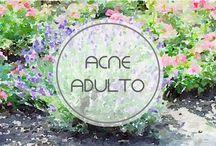 Acne Adulto / Acné adulto, Que es y cómo tratarlo si tienes más de 25 años. Con la edad nuestra piel no reacciona igual y por tanto no podemos tratar el acné en la edad adulta como si fuéramos adolescentes. Espero que os sea de ayuda. Bss