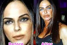 FAMOUS PLASTICS BEFORE-AFTER