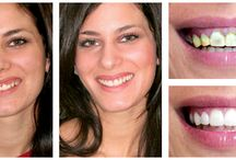 Before and After Dental Pictures / You'll wowed and inspired by these before and after dental pictures!
