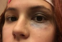 Fake injuries