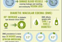 Patient information: Diabetic eye disease
