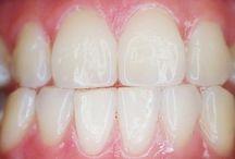 Zahngesund