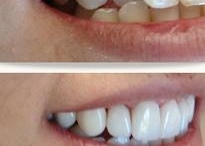 Cosmetic Dentistry Hyderabad