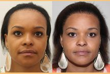 Female hair treatment / Features female patients treated by My World Hair Transplant Center in Brussels, Belgium.