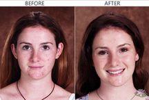 Pielęgnacja Skóry / Wszystko Pielęgnacja skóry związane można znaleźć na Zdrowie.kikik.co. Dowiedz się, jak dbać o Pielęgnacja skóry tutaj.