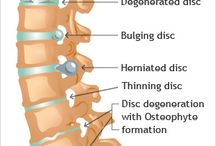 Osteoarthritis and Psoriatic Arthritis