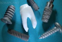 Truly anatomic zirconia implant