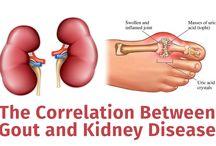 Alternative Kidney Disease Medicine