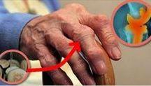 remedio artritis