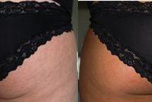 Skinny Tan Before & After Photos