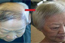 Hair tratament