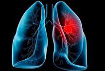 Leczenie - Rak, nowotwory - cancer