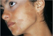 causes of skin pigmentation