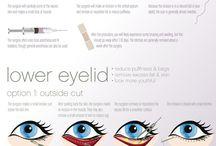 Eyelids Surgery