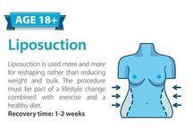 liposucion