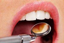Profilaxie / Igienizarea intregii cavitati bucale o data la 3-6 luni.