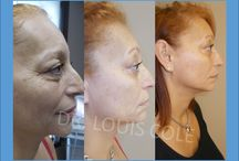 Ultherapy / The only FDA approved treatment to tighten skin on the face, neck and chest