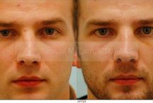 Revision Rhinoplasty / Revision rhinoplasty surgeon Dr. Lam is a very experienced revision rhinoplasty specialist who takes pride in not only restoring and enhancing the shape of one's nose but also returning a damaged nose back to a functioning, breathing condition again.