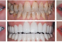 Cosmetic Dentistry St Johns Fl / Dr. Lewis, at the Bartram Dental Center St. Johns FL, uses a variety of tools to brighten your smile, correct teeth alignment and make you feel comfortable while getting your dental work done.  He can give you that perfect smile you have always dreamed of in as little as two dental visits. Smile Makeovers, Dental crowns, veneers, bonding and teeth whitening.