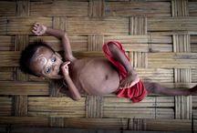 desnutricion ifantil / En este tiempo, en la Argentina, la desnutrición es una de las causas más dramáticas e inconcebibles de mortalidad infantil. Y lo más complejo es que no existe de un solo tipo. Hay varias formas de desnutrición infantil que avanzan y se instalan en poblaciones vulnerables y rodeadas de extrema pobreza como un mal silencioso. EN ARGENTINA MUEREN 8 NIÑOS POR DIA A RAÍZ DEL HAMBRE.