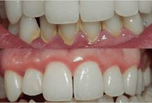 TEETH CLEEN TEO TREE AND CLOVER OIL