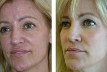 Non-Surgical Facelift Exercise Routines / Lift Up Drooping Facial Skin And Diminish Face Wrinkles Via Facial Gymnastics Regimens