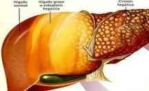 eliminar gordura no rim