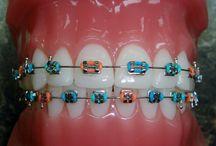 braces cool
