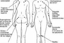 Fibromiàlgia