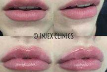 Injecx Clinics
