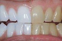 Δοντια λευκα με κουρκουμι