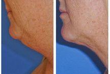 Liposuction - Chin / Dr. William Hall specializes in chin liposuction treatments. He uses a variety of techniques for surgery such as laser lipo and smart lipo. Call today to schedule your complimentary consultation to learn more about liposuction cost, liposuction pros and cons, and liposuction side effects at 480-946-7100. View the Infini Phoenix Liposuction website at Infiniskin.com to see additional liposuction before and after photos, videos, and reviews.